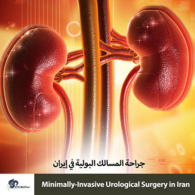 urology surgery in Iran