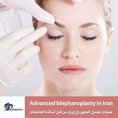 Blepharoplasty surgery in Iran