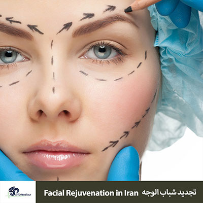 facial rejuvenation in Iran - cosmetic surgery